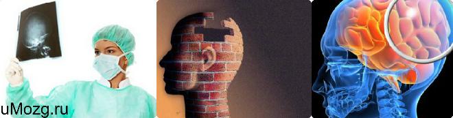 лечение ушиба головного мозга