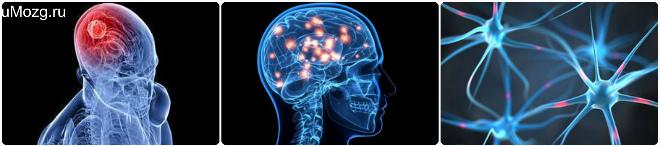 Диффузные поражения мозга