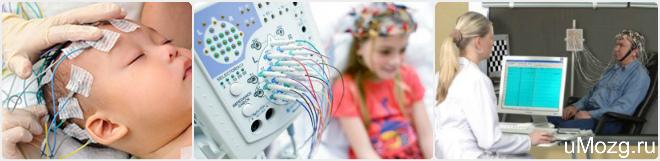 процедуры при эпилепсии