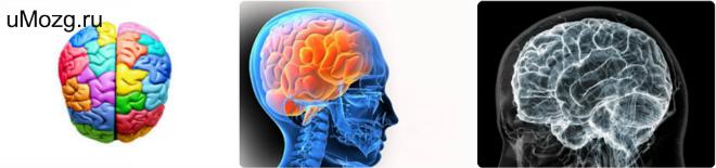 Лечение инфаркта головного мозга
