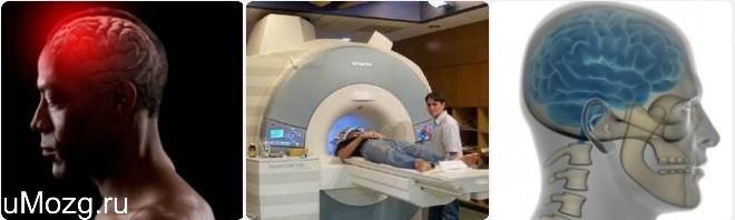 назначение КТ мозга