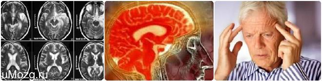 лечения дисциркуляторной энцефалопатии