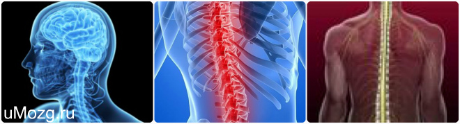 патологии спинного мозга