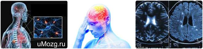 выявление причин появления рассеянного склероза