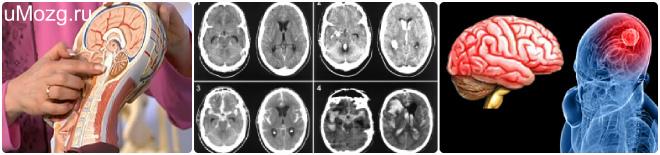 опухоли головного мозга диагностика