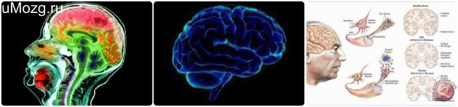 Головной мозг атрофия