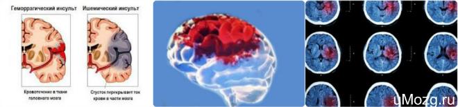 Инфаркт головного мозга человека