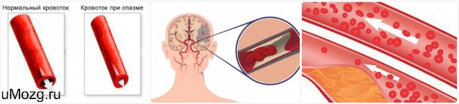 сужение сосудов мозга головного мозга