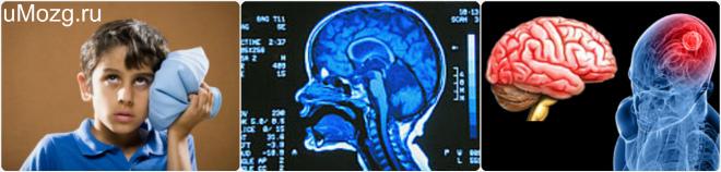 головной мозг сотрясение