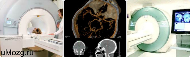 томограмма мозга