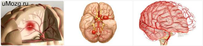 диагностировать спазм сосудов мозга