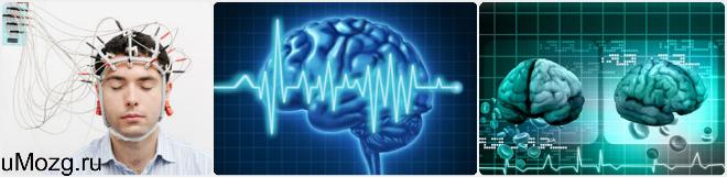ЭЭГ при черепно-мозговых травмах