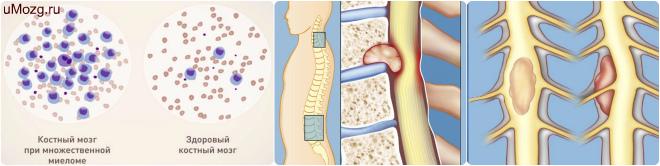 Опухоль костного мозга