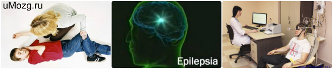 Действия при эпилептическом припадке
