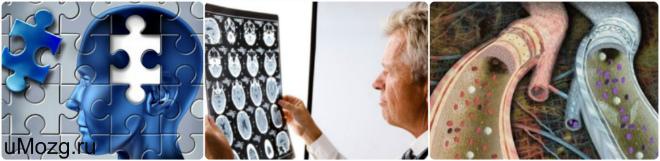 энцефалопатия головного мозга что это такое , последствия
