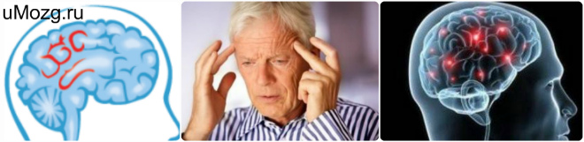 Причины энцефалопатии головного мозга