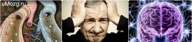 дисциркуляторная энцефалопатия степени