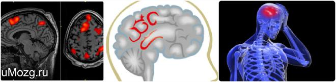 Симптомы энцефалопатии, последствия