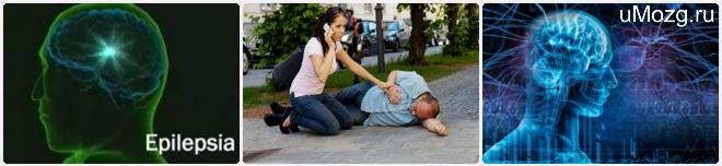 Лечение эпилепсических припадков
