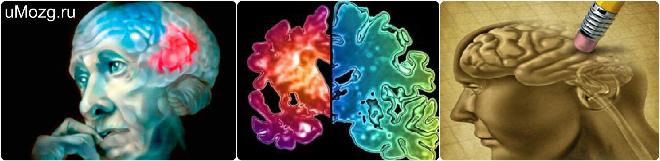 диагностика в болезни альцгеймера симптомов и признаков