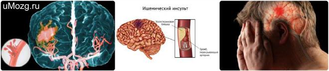 Симптомы хронической ишемии головного мозга