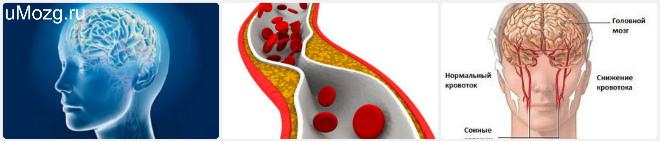 лечение атеросклероза сосуда головного мозга препараты