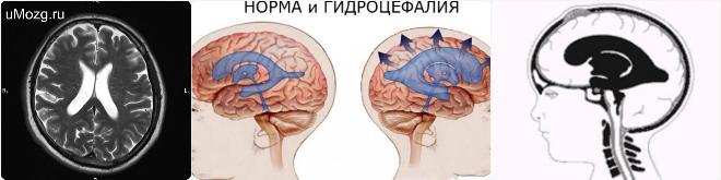 наружная гидроцефалия головного мозга что это такое