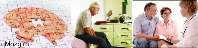признаки болезни альцгеймера на ранней стадии