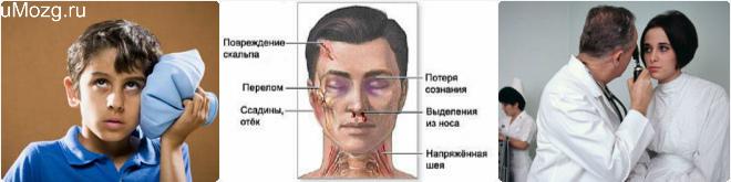 открытая черепно мозговая травма последствия