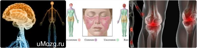 Как проходит туберкулез кожи