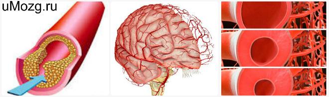 Причины, вызывающие нарушение тонуса сосудов головного мозга
