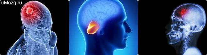 Лечение, что такое опухоль?