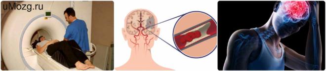 Степени хронической ишемии головного мозга