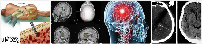 стереотаксическая биопсия головного мозга
