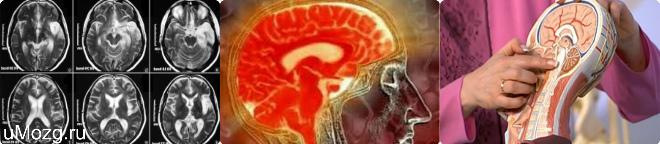 лечение микроангиопатию головного мозга что это такое