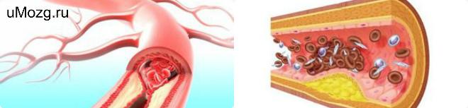 лечить Атеросклероз сосудов