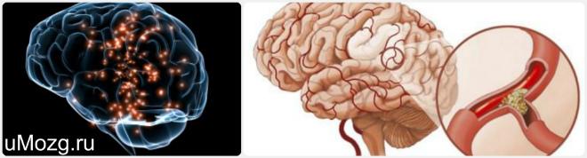 энцефалопатия головного мозга лечение