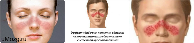 Классификация Волчанки