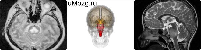 строение головной мозг строение и функции