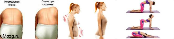 Симптомы и формы нарушения координации движений