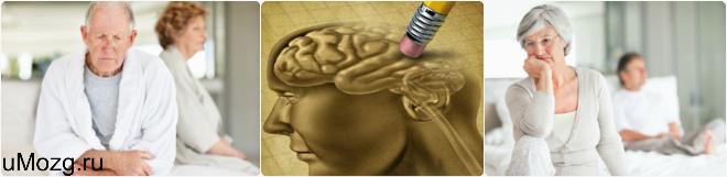 Болезнь Альцгеймера стадии