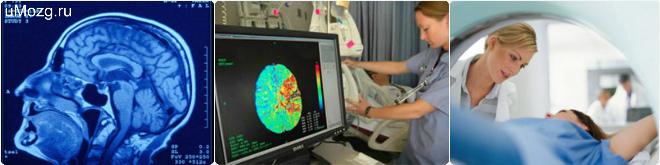 Отличия МРТ от КТ