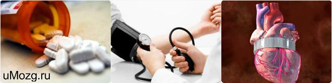 Лечить артериальную гипертензию 2 степени риска 2