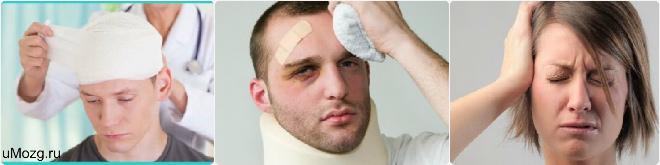 черепно мозговая травма лечение