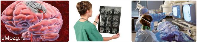 признаки ишемии головного мозга