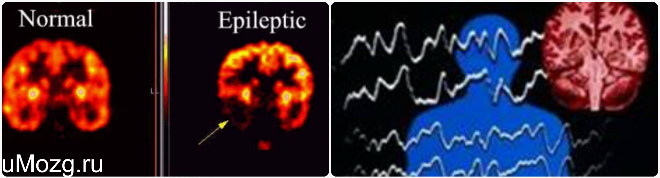 Классификация причин возникновения эпилепсии