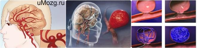 Подготовка к проведению процедуры операция на сосудах головного мозга