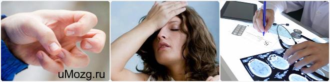 Возможные причины развития эпилепсии