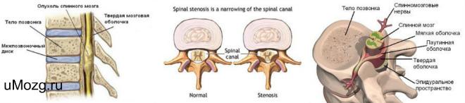 лечение спинного мозга