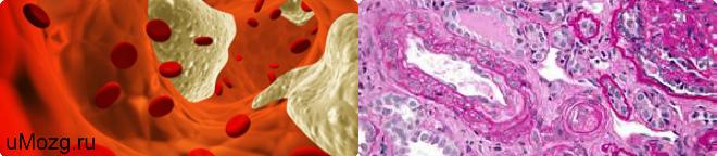 Причины и виды болезни